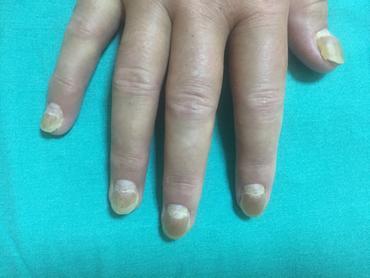 Abb.5 Ablösen der Fingernägel, mit Wachsen neuer Nägel darunter