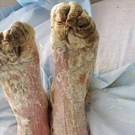 Abbildung 2: Zu sehen ist ein schwerer Fall von Scabies crustosa mit bis zu drei Zentimeter dicken Verkrustungen.