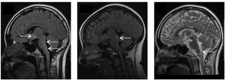 Repräsentative <span>MRT</span>-Bilder von <span>NMOSD</span>-Patienten