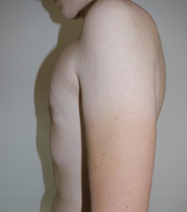 Abb. 3: Zustand dreieinhalb Jahre nach Op. und Gewichtsnormalisierung durch Sport, der vorher aus Scham nicht ausgeübt wurde.